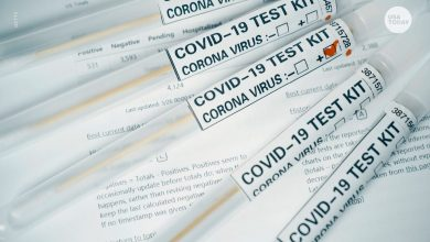 "Photo of עדכוני Coronavirus: ארה""ב על סף של 5 מיליון מקרים שאושרו; ייתכן שהפקודה המבצעת של טראמפ חרגה מסמכות"